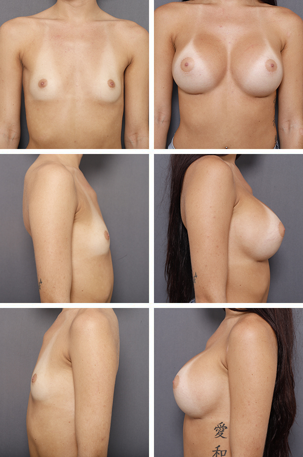Breast Augmentation - Patient 18