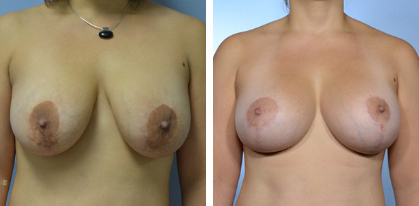 Breast Lift with Implants Patient 6