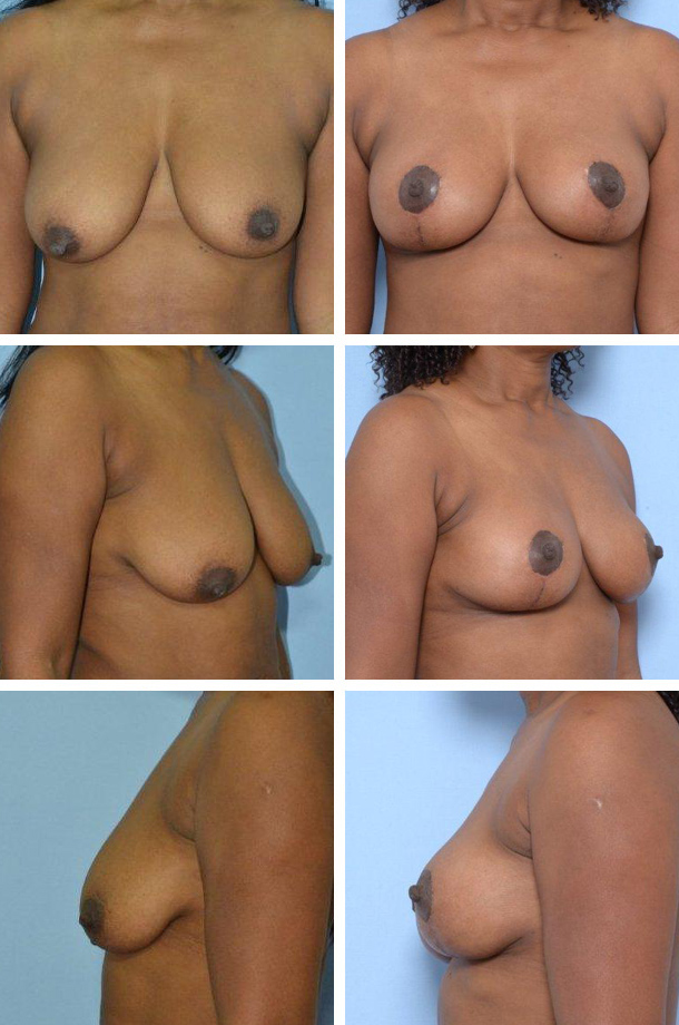 Breast Lift Patient 1