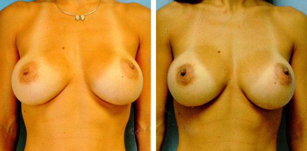 Breast Revision Patient 1