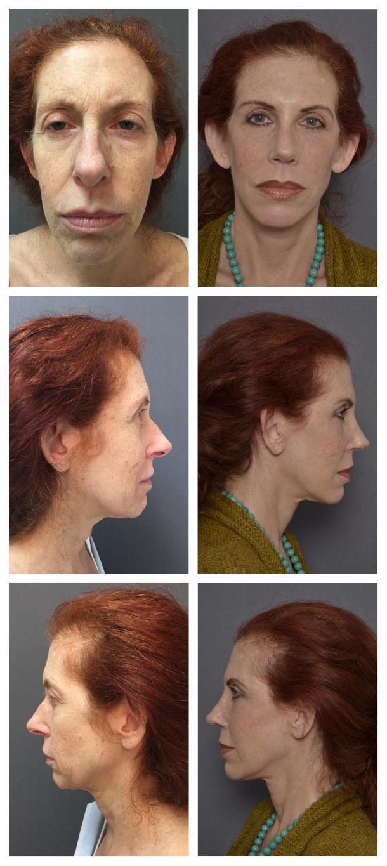 Facelift Patient 1