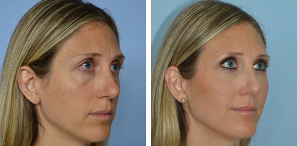 Facial Fat Transfer Patient 1
