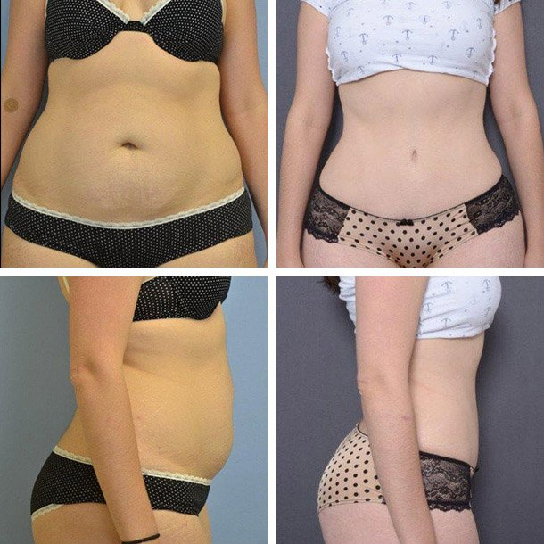 Tummy Tuck Patient 1