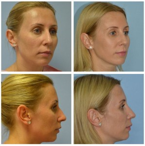 Rhinoplasty Before and After Photos Miami