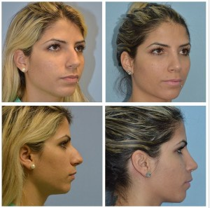 Nose Reshaping Surgery Miami FL