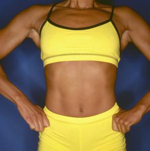 How Can I Minimize My Tummy Tuck Scar?